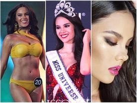 Đẹp như tân Hoa hậu Hoàn vũ 2018 Catriona Gray vẫn bị soi khuyết điểm nhan sắc không thể chỉnh sửa