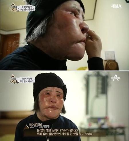 Thảm họa thẩm mỹ xứ Hàn qua đời ở tuổi 57: Dùng cả tuổi thanh xuân để dao kéo, tự mua dầu ăn về tiêm lên mặt-4