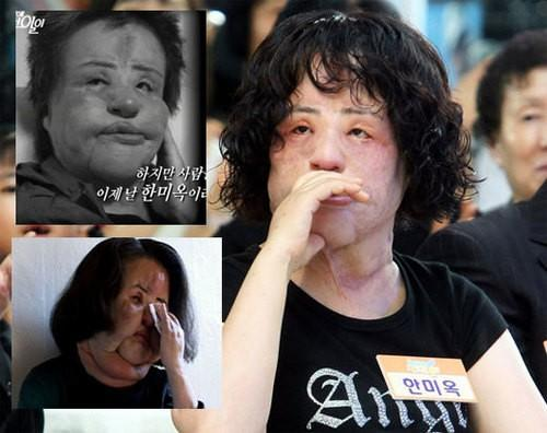 Thảm họa thẩm mỹ xứ Hàn qua đời ở tuổi 57: Dùng cả tuổi thanh xuân để dao kéo, tự mua dầu ăn về tiêm lên mặt-3