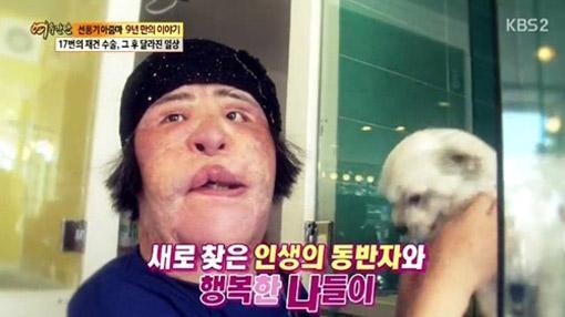 Thảm họa thẩm mỹ xứ Hàn qua đời ở tuổi 57: Dùng cả tuổi thanh xuân để dao kéo, tự mua dầu ăn về tiêm lên mặt-5