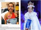 Hoa hậu 28 tuổi suy thận nặng vì liên tục uống 'thần dược'