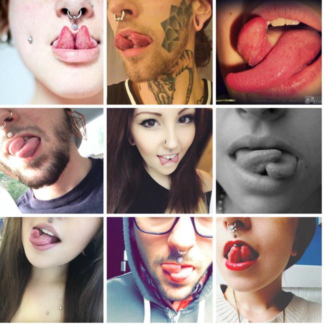 Trào lưu tách lưỡi của giới trẻ với những biến chứng khủng khiếp-1