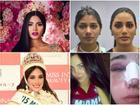 Giật mình với nhan sắc 'đập đi xây lại' của những hoa hậu Venezuela nổi tiếng nhất thế giới