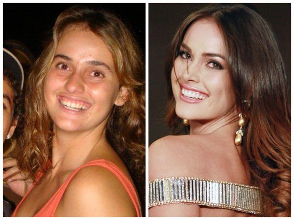 Giật mình với nhan sắc đập đi xây lại của những hoa hậu Venezuela nổi tiếng nhất thế giới-18