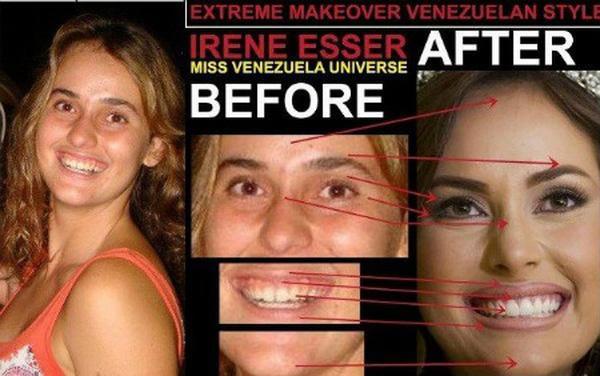 Giật mình với nhan sắc đập đi xây lại của những hoa hậu Venezuela nổi tiếng nhất thế giới-19