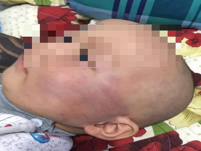 Bảo mẫu tát bé 19 tháng tuổi bầm mặt rồi nói dối bị té-3