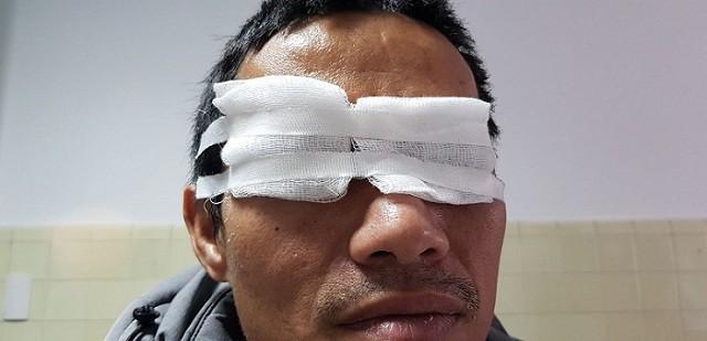 Quảng Bình: Một nam giới đối mặt với nguy cơ mù mắt phải vì chơi pháo hoa dịp lễ tết-1