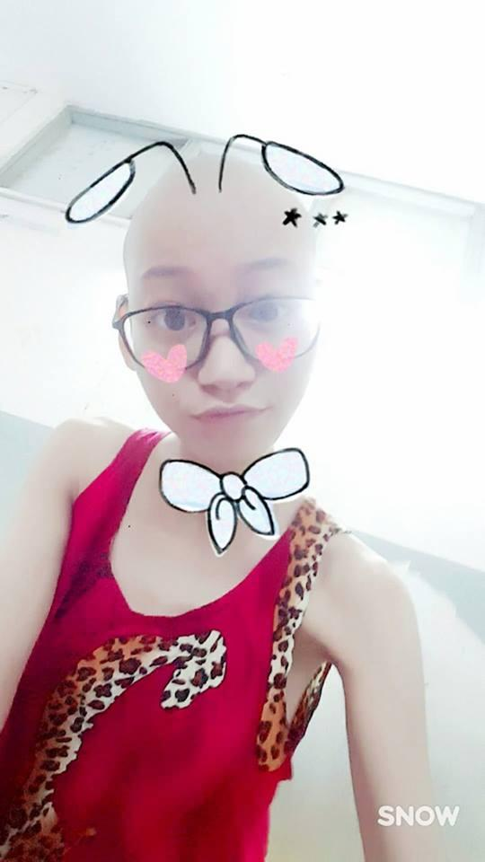 Chết lặng khi người mẫu Kim Anh than với người thân lúc điều trị ung thư: Anh ơi, em đau và mệt lắm-2