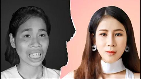 HY HỮU: Cô gái trở nên xinh đẹp sau thẩm mỹ suýt bị mẹ đuổi đi vì không nhận ra con gái-1