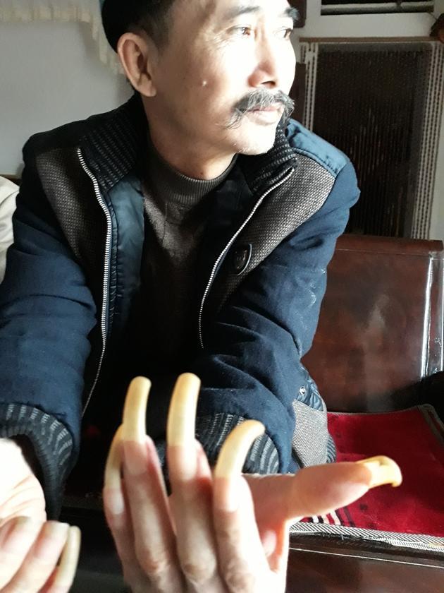 ĐÁNG SỢ: Người đàn ông bị vợ nhốt trong chuồng cọp hơn 3 năm ở Thanh Hóa-2