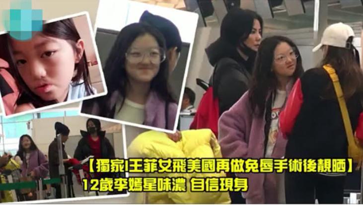 Con gái Lý Á Bằng - Vương Phi xuất hiện với diện mạo bất ngờ sau ca phẫu thuật hở hàm ếch-1