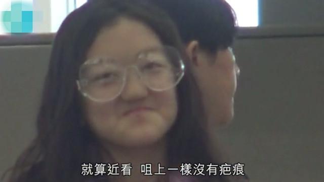 Con gái Lý Á Bằng - Vương Phi xuất hiện với diện mạo bất ngờ sau ca phẫu thuật hở hàm ếch-4