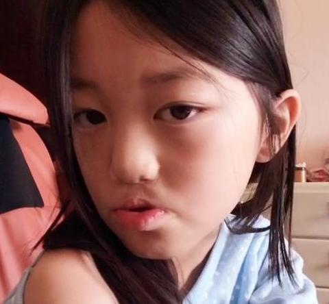 Con gái Lý Á Bằng - Vương Phi xuất hiện với diện mạo bất ngờ sau ca phẫu thuật hở hàm ếch-2