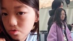Con gái Lý Á Bằng - Vương Phi xuất hiện với diện mạo bất ngờ sau ca phẫu thuật hở hàm ếch