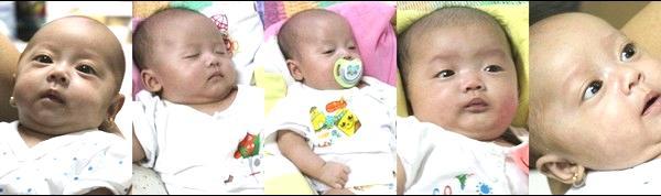 Bất ngờ trước ngoại hình sau 6 năm của 5 đứa trẻ trong ca sinh 5 duy nhất ở Việt Nam-2