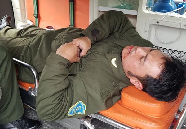 Nhân viên an ninh sân bay Nội Bài bị đánh gãy 4 răng-1