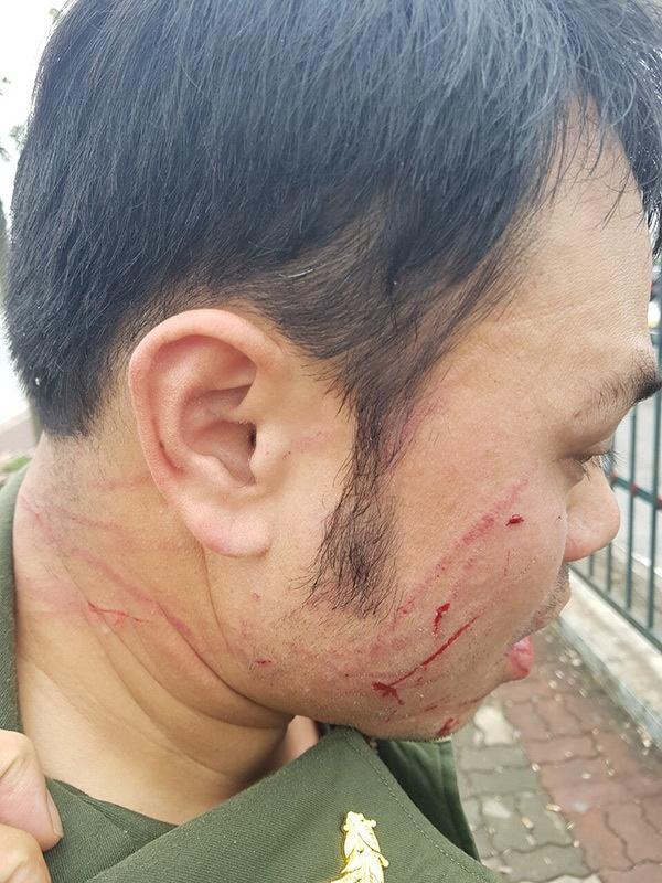 Nhân viên an ninh sân bay Nội Bài bị đánh gãy 4 răng-2