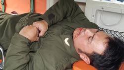 Nhân viên an ninh sân bay Nội Bài bị đánh gãy 4 răng
