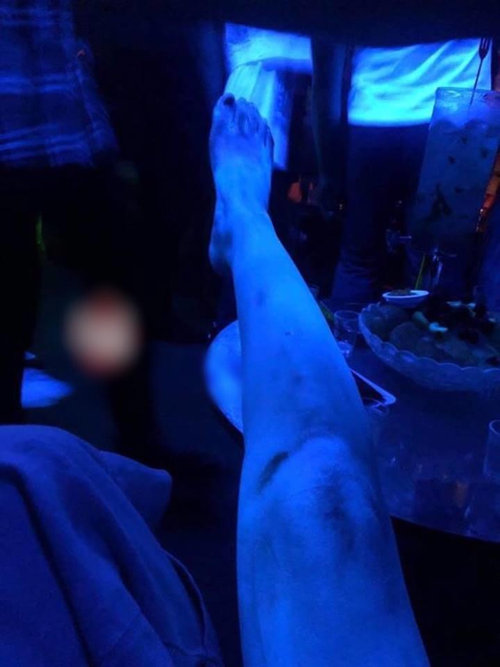 HÚ HỒN LÀM ĐẸP ĐÓN TẾT: da phát sáng như người ngoài hành tinh sau khi tắm trắng-3