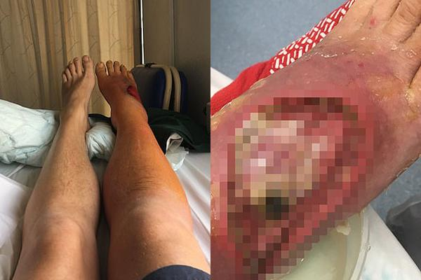 Rùng mình, bác sĩ thả 400 con giòi vào chân để ăn thịt chữa bệnh-1