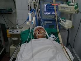 Nam sinh 17 tuổi bị nhóm đối tượng đánh chấn thương sọ não, hôn mê bất tỉnh
