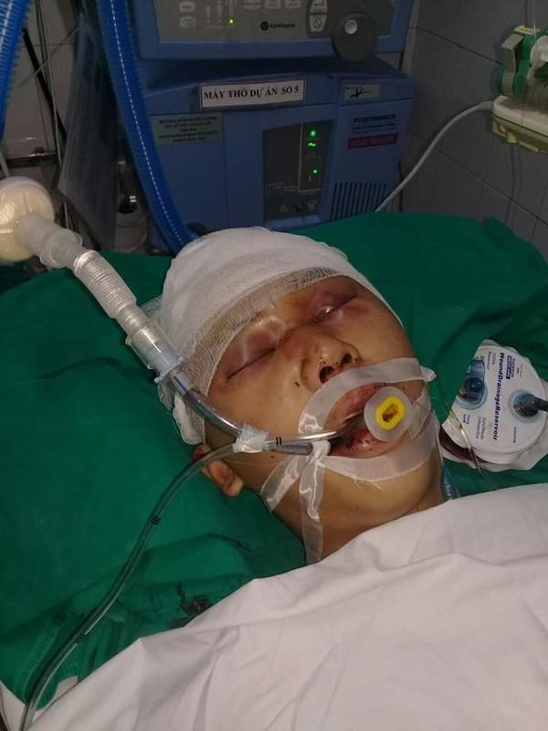 Nam sinh 17 tuổi bị nhóm đối tượng đánh chấn thương sọ não, hôn mê bất tỉnh-1