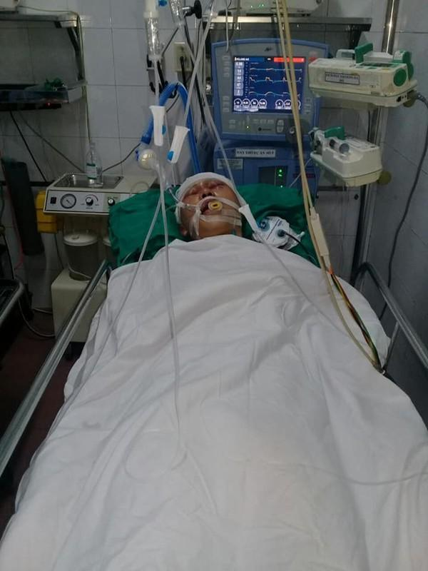 Nam sinh 17 tuổi bị nhóm đối tượng đánh chấn thương sọ não, hôn mê bất tỉnh-2