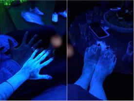 HÚ HỒN LÀM ĐẸP ĐÓN TẾT: da phát sáng như người ngoài hành tinh sau khi tắm trắng