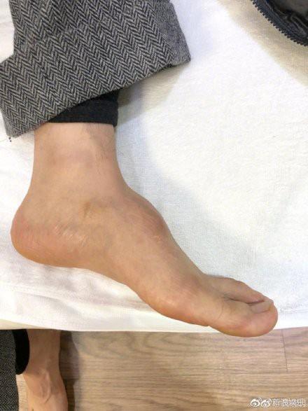 Bị dân mạng soi bàn chân kì dị, Huỳnh Hiểu Minh tung thêm ảnh chứng minh chân của anh thực sự bất thường-4