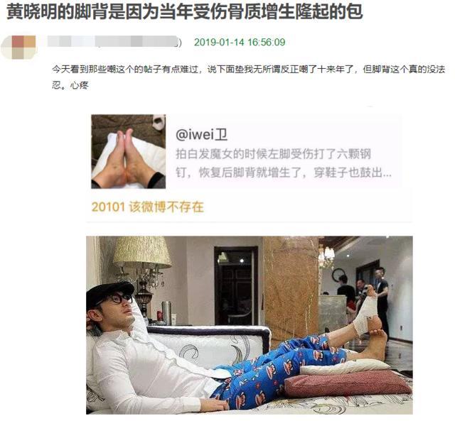 Bị dân mạng soi bàn chân kì dị, Huỳnh Hiểu Minh tung thêm ảnh chứng minh chân của anh thực sự bất thường-3