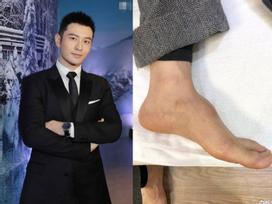 Bị dân mạng soi bàn chân kì dị, Huỳnh Hiểu Minh tung thêm ảnh chứng minh chân của anh thực sự bất thường