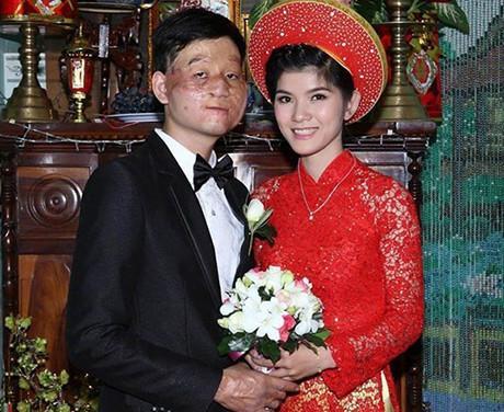 Cặp đôi vợ xinh, chồng xấu đã chứng minh tình yêu thực sự trước lời miệt thị của dân mạng 5 năm về trước-1