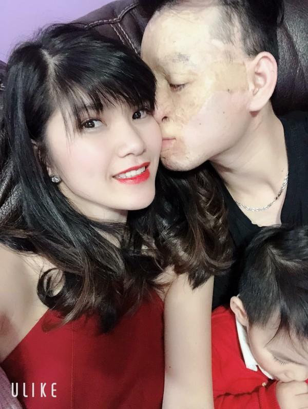 Cặp đôi vợ xinh, chồng xấu đã chứng minh tình yêu thực sự trước lời miệt thị của dân mạng 5 năm về trước-2