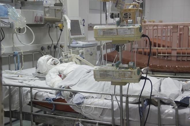 Bố hút thuốc bén lửa vào bình gas, con gái 10 tuổi bỏng nặng-2
