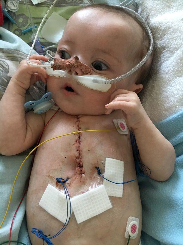 Ngừng tim 25 lần/một ngày, cậu bé vẫn sống sót diệu kỳ-2