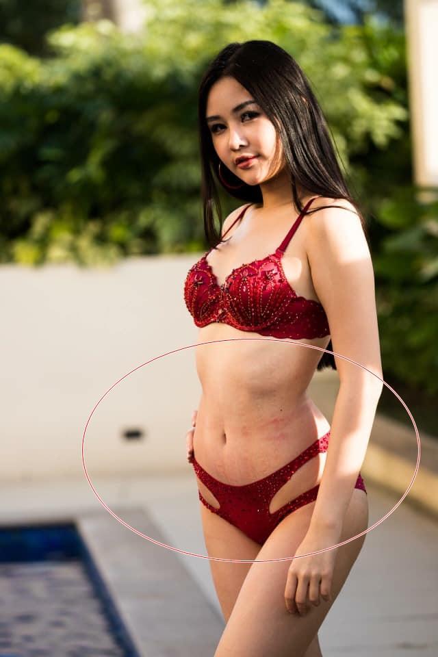 Nghi án Lê Âu Ngân Anh hút mỡ cấp tốc để thi Miss Intercontinental và sự thật về những dấu lằn đỏ đáng sợ trên cơ thể-2
