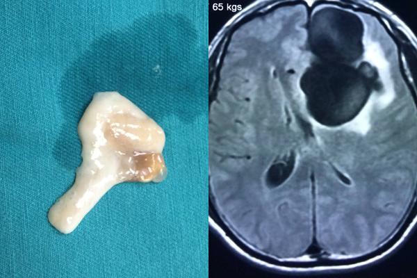 Mê tiết canh, nam thanh niên bị sán làm tổ to trong não-1