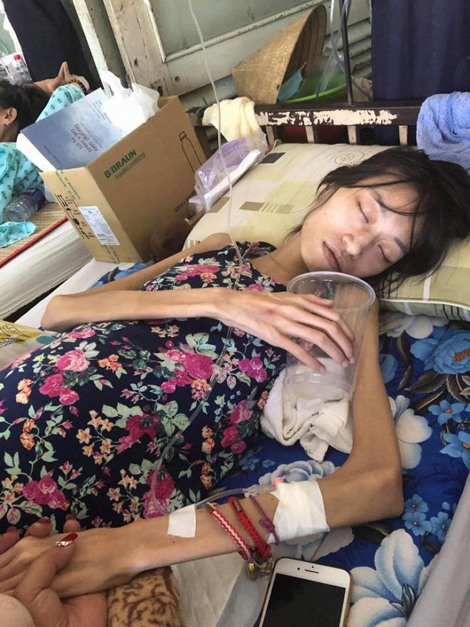 Người mẫu 9x Kim Anh qua đời ở tuổi 26 sau thời gian điều trị ung thư buồng trứng giai đoạn cuối-5