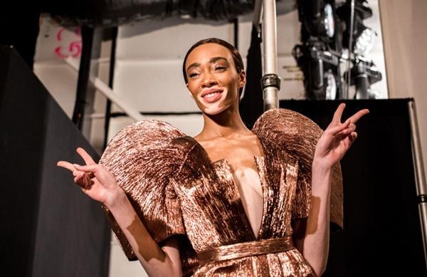 Người mẫu bạch tạng từng tham gia Victorias Secret Show sẽ diễn cho NTK Công Trí tại New York Fashion Week-2