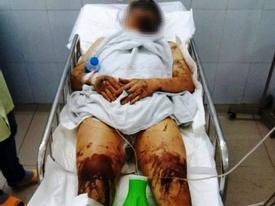 Một vụ tạt axit, hủy hoại thân thể gây rúng động Quảng Ngãi