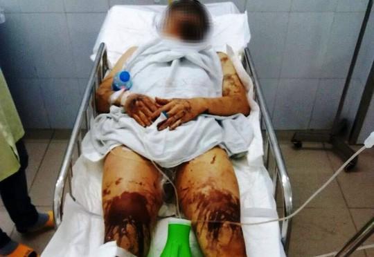 Một vụ tạt axit, hủy hoại thân thể gây rúng động Quảng Ngãi-2