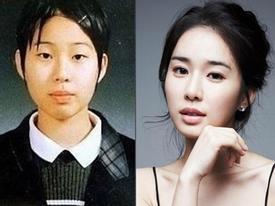 Mỹ nhân Yoo In Na tiết lộ từng bị bắt nạt hồi đi học vì ngoại hình xấu xí
