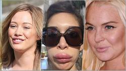 Những thảm họa bơm môi của showbiz khiến ai nhìn cũng thấy thương