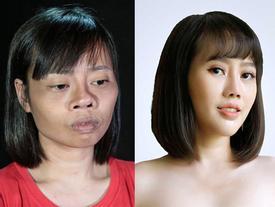 Gặp tai nạn trong ngày tốt nghiệp đại học, cô gái trẻ 2 lần thẩm mỹ hỏng, lần thứ 3 lột xác khiến người thân giật mình
