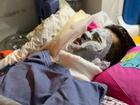 Việt kiều bị tạt axit, cắt gân chân: Thu giữ nhiều chứng cứ quan trọng