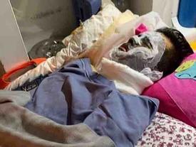 Việt kiều bị tạt axit ngày Tết: Anh trai nạn nhân rời quê bất thường
