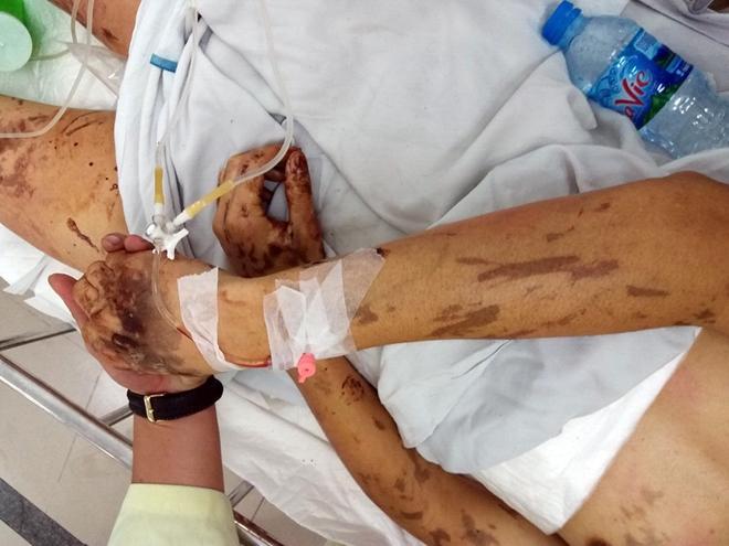 Nhiều tình tiết mới trong vụ tạt axit, cắt gân chân-1