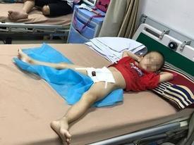 Thêm 29 bé trai Hưng Yên bị sùi mào gà do nong bao quy đầu tại nhà nữ y sĩ