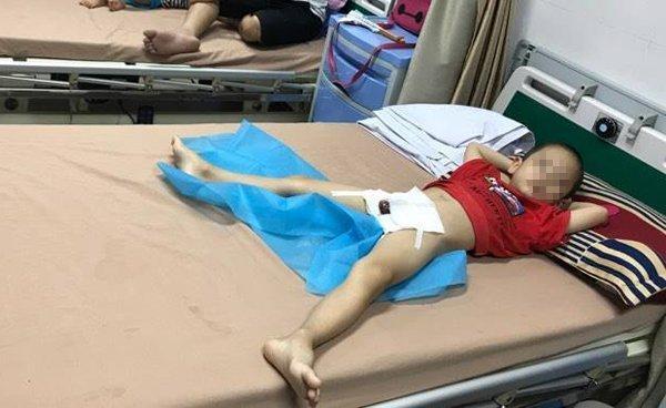 Thêm 29 bé trai Hưng Yên bị sùi mào gà do nong bao quy đầu tại nhà nữ y sĩ-1