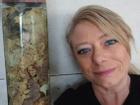 Chồng qua đời vì nhiễm trùng, vợ giữ lại ruột làm kỷ niệm